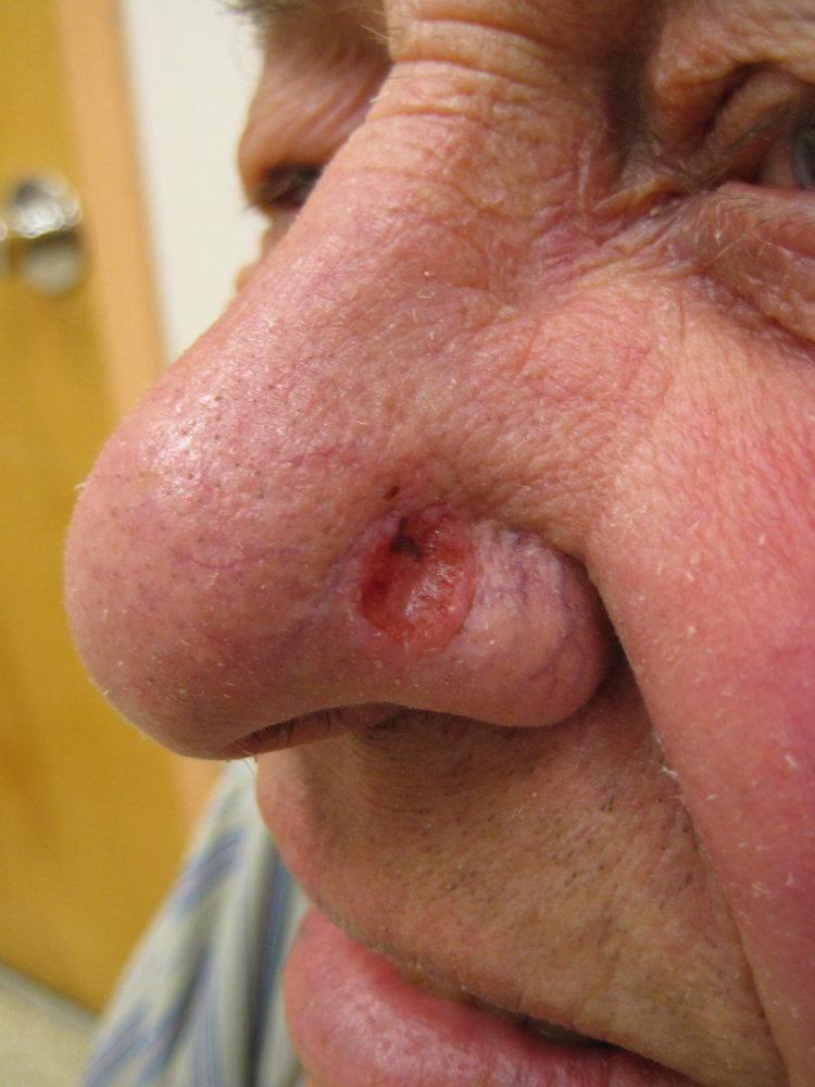 Папиллома в носу, инвертированная полости носа и её лечение