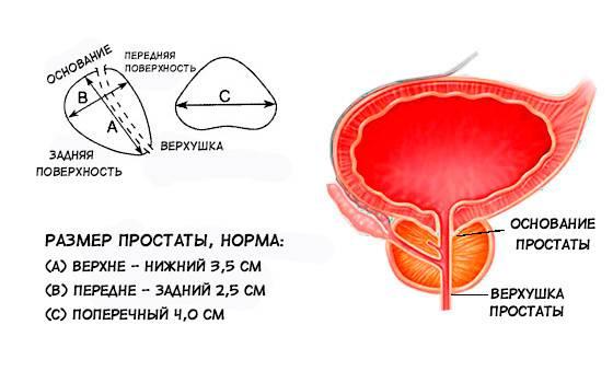 Какие могут быть размеры опухоли простаты и как измерить?