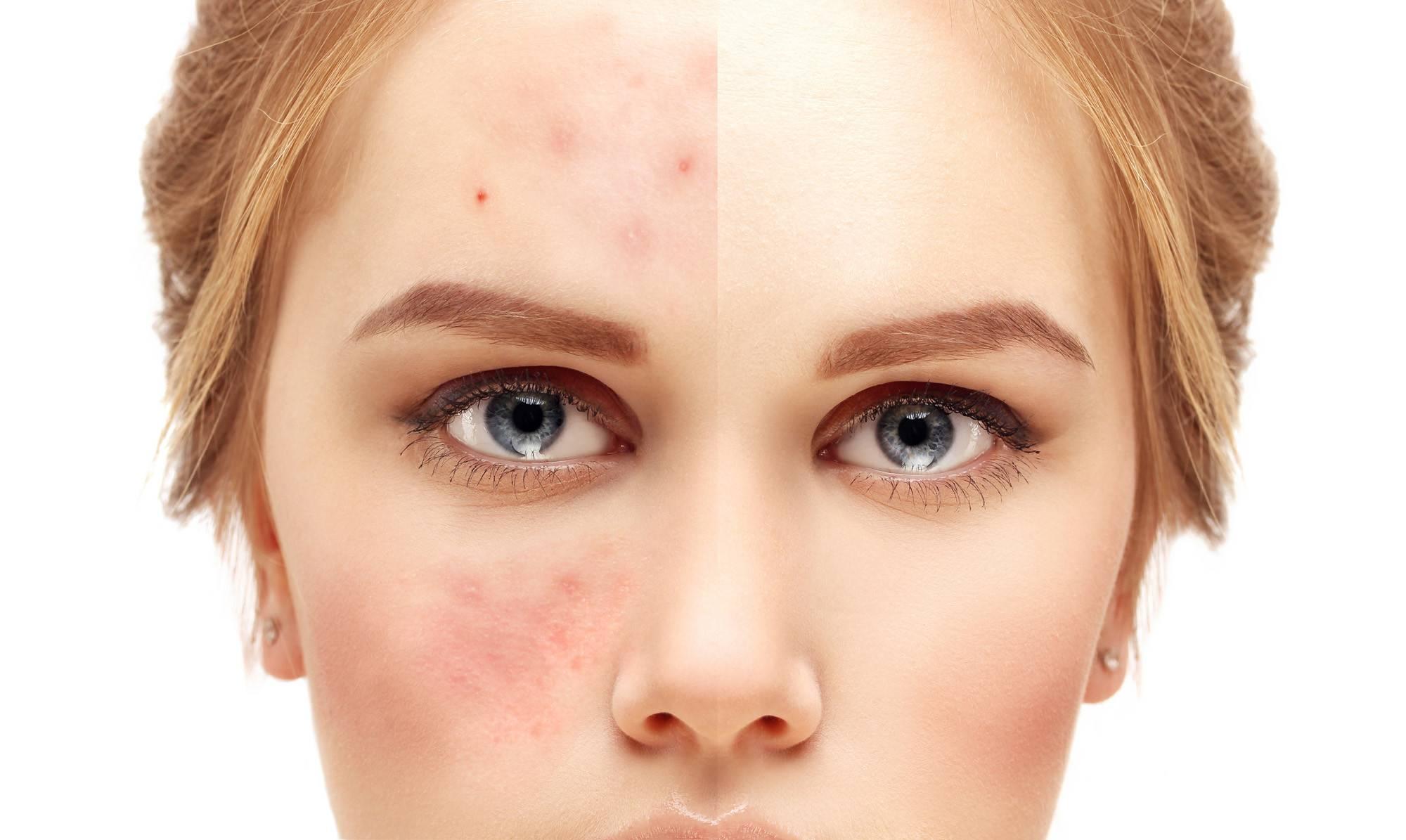Причины появления болючих прыщей на лице и методы избавления от них