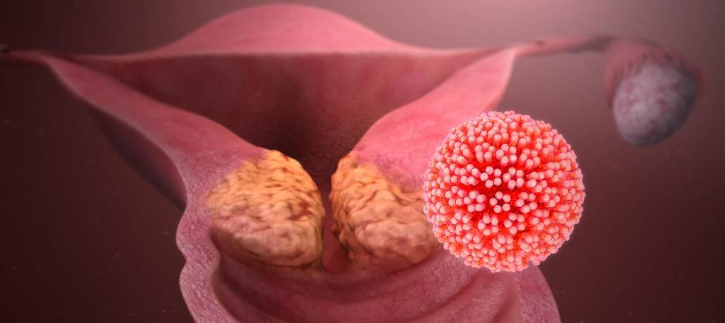 Папилломавирусная  инфекция.