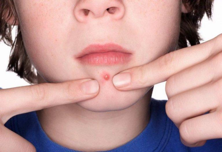 Как быстро вылечить фурункул в носу?