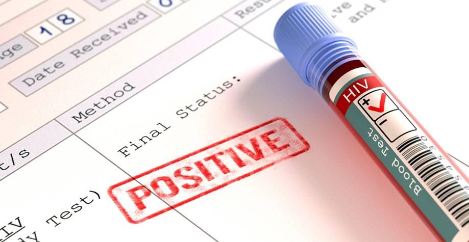 Сколько действительны анализы на вич и гепатит