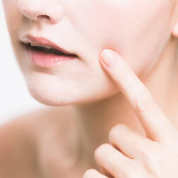 Ретиноиды местные, системные, топические, наружные для лица от прыщей, морщин, акне, псориаза. таблетки, крема, мази, лосьоны