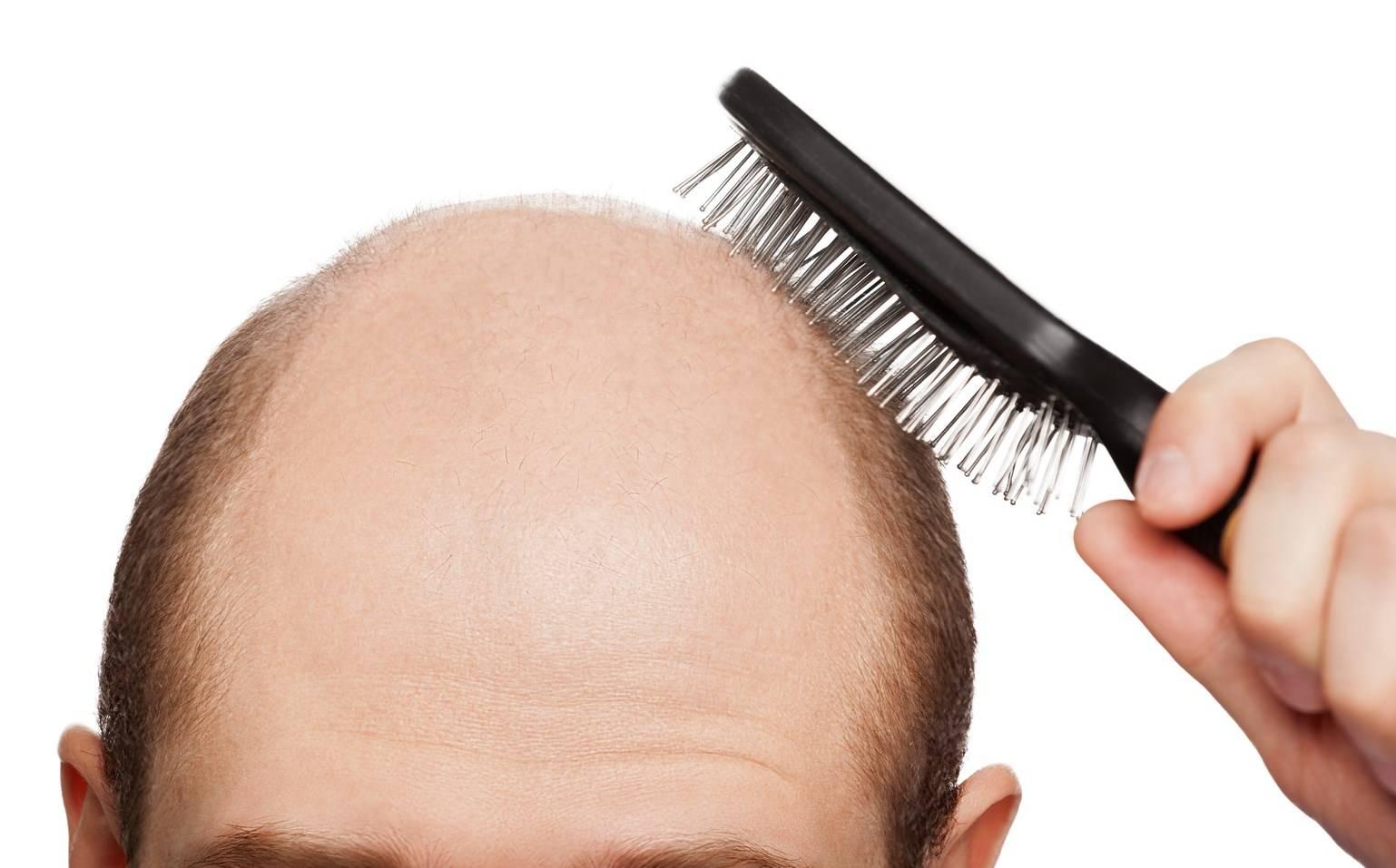 Как мужчине отрастить длинные волосы — комплексный подход к решению вопроса