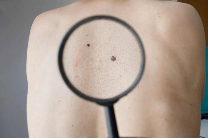 Опасные родинки — типы, проверка онколога и советы по обследованию родинок. 125 фото родинок, которые считаются врачами опасными