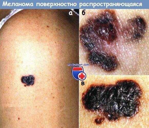 Симптомы меланомы распространяющейся поверхностно