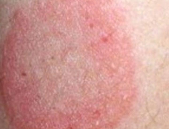 Красные пятна на внутренней стороне бедра – фото, причины появления, как лечить