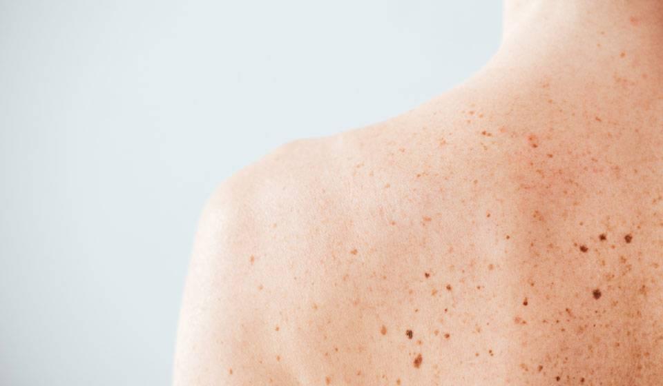 Начальная стадия меланомы