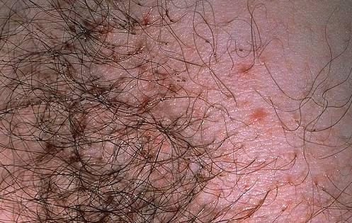 Фото, как выглядят вши и гниды на голове у человека: белые крупинки на голове — перхоть или педикулез?