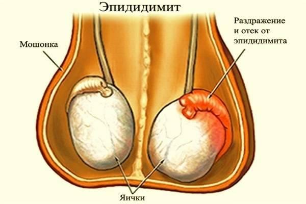 Эпидидимит у мужчин: симптомы, диагностика и лечение болезни