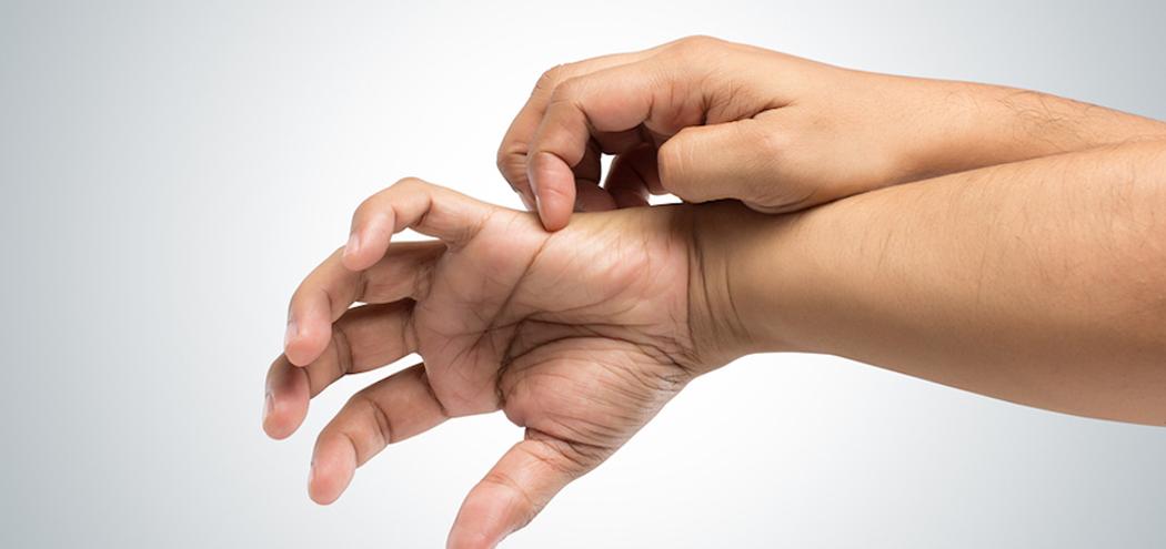 Фото грибка на коже рук: как выглядит