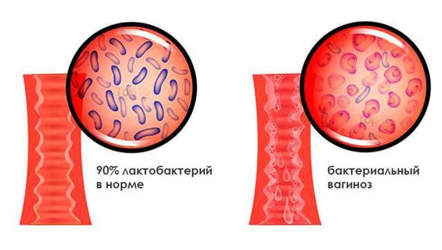 Гарднереллёз у женщин: причины возникновения, признаки и лечение, могут ли болеть гарднереллёзом мужчины?