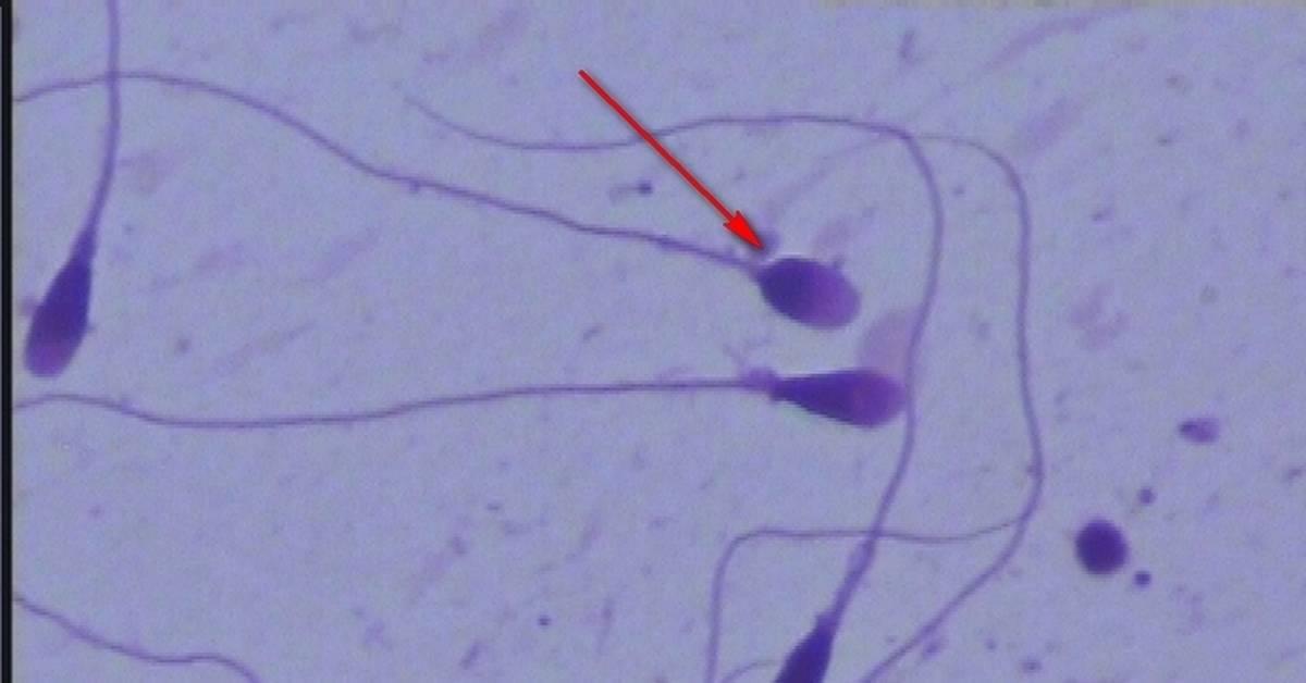 Советы для повышения подвижности сперматозоидов