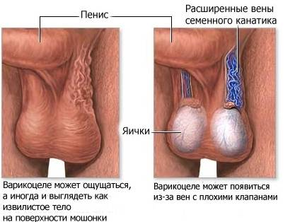 Причины, почему болят яйца у мужчины и лечение заболеваний