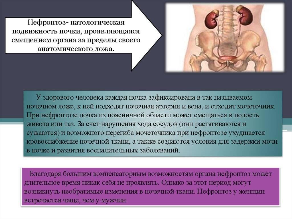 Нефроптоз или опущение правой почки