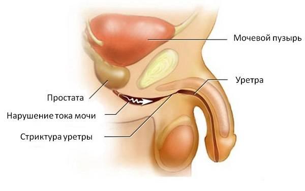 Хронический уретрит: лечение и симптомы.