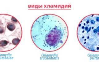 Паховый (венерический) лимфогранулематоз у женщин и мужчин