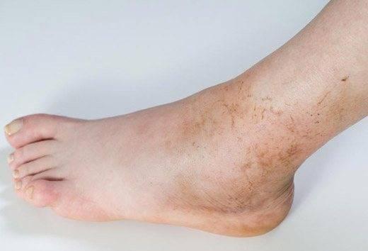 Черные точки на ногах — что провоцирует симптом?
