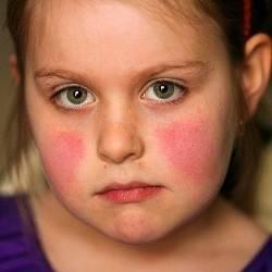 Бленнорея взрослых в 100 случаев вызывается гонококком. бленнорея у новорожденных – причины, симптомы, лечение. что такое конъюнктивит - видеоролик