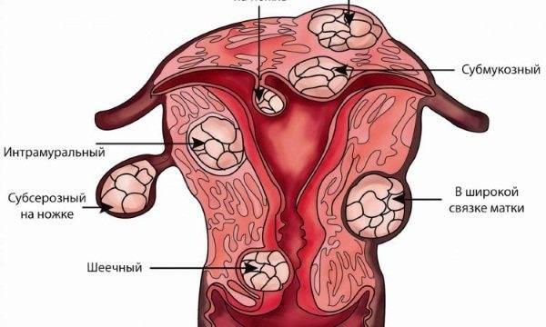 Виды воспалений по-женски в гинекологии и их лечение