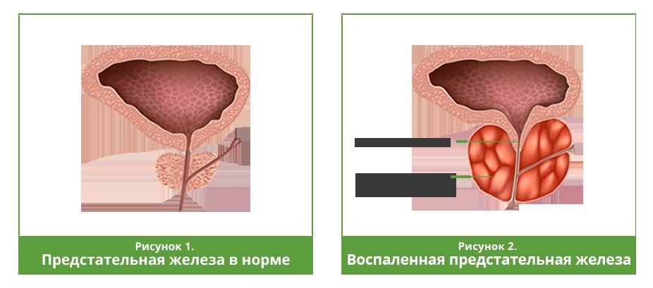 Парауретральный фиброз в паренхиме простаты