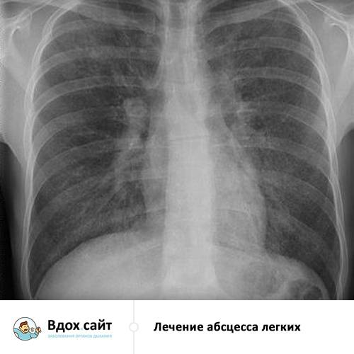Абсцесс может развиваться в любом органе