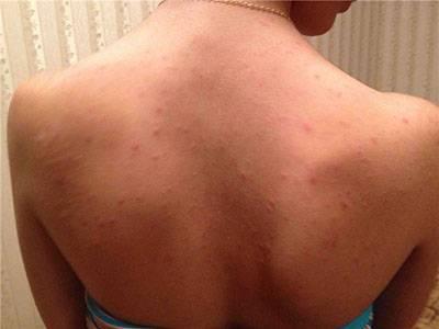 Сыпь на плечах: признаки заболеваний, фото, методы лечения