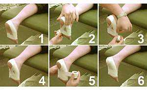 Лечение шпоры на пятке в домашних условиях