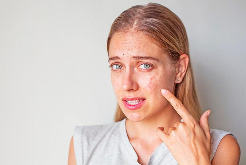 Какие продукты вызывают прыщи на лице – и как от них избавиться
