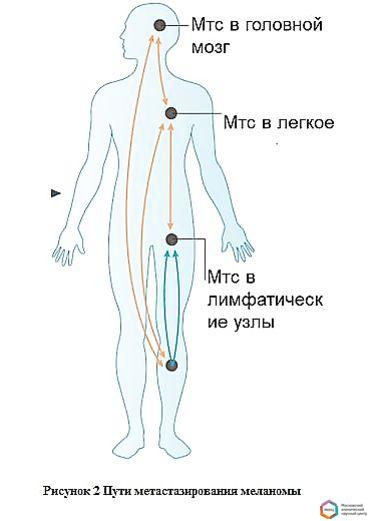 Меланома с метастазами в головной мозг