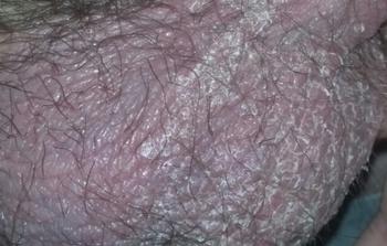 Шелушится кожа на яичках у мужчин: фото, причины, лечение
