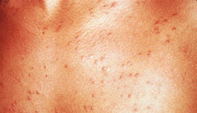 Потница у грудничка: как отличить ее от аллергии, как вылечить и предотвратить повторное появление