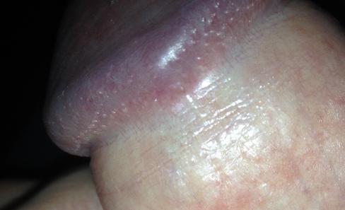 Причины и лечение трещин на крайней плоти у мужчин