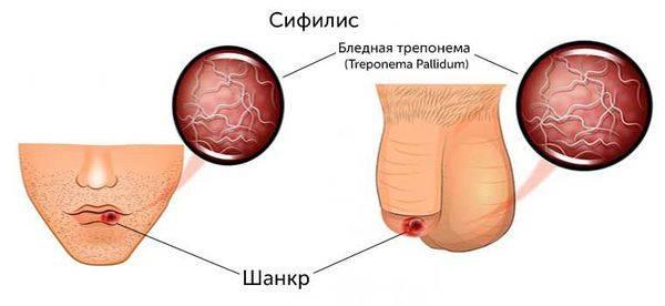 Treponema pallidum: характеристика, в анализе крови, лечение