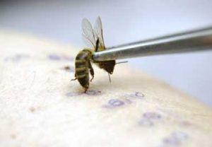 Лечение простатита укусами пчел: схема и отзывы