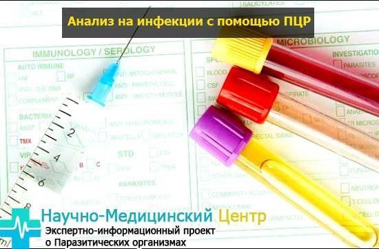 Мазок на гонорею: подготовка, методы анализа и расшифровка результатов