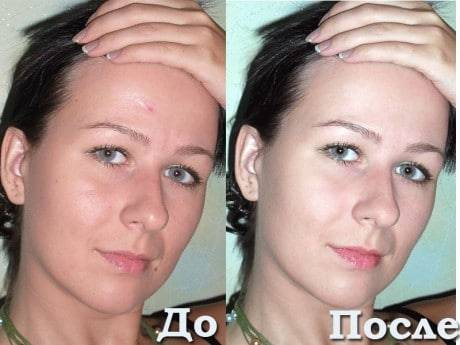 Глина для жирной кожи – какая подходит для лица с расширенными порами, для сужения