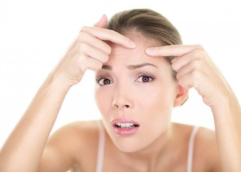 Лечение комедонов на лице — самые лучшие методы избавления от комедонов!