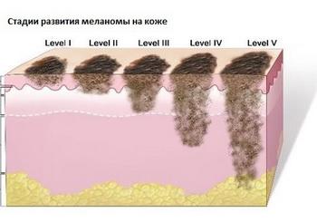 Меланома костей позвоночника симптомы и лечение