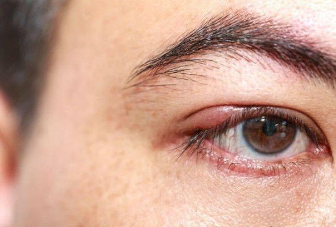 Ячмень на глазу – чем лечить