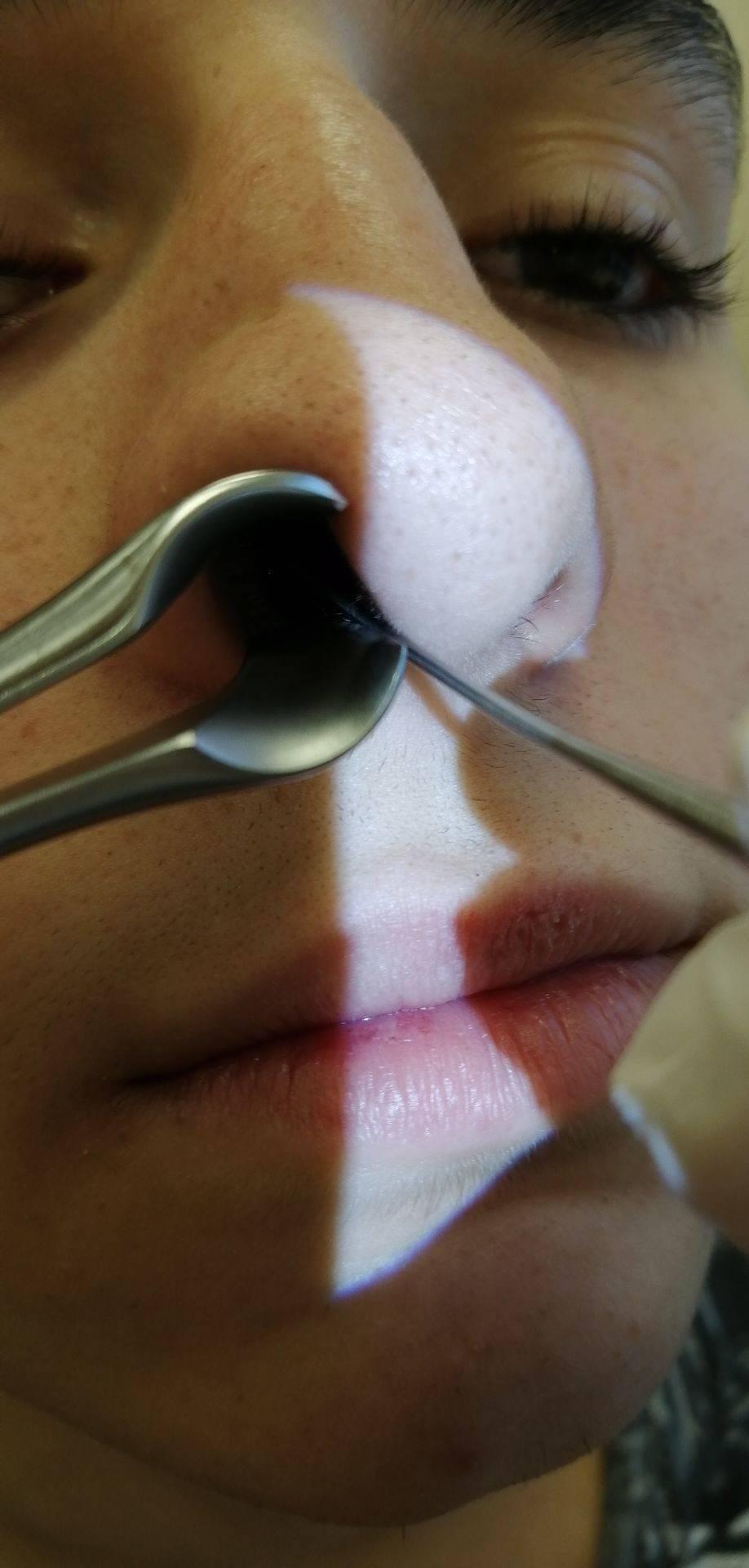 Папилломы полости носа и придаточных пазух