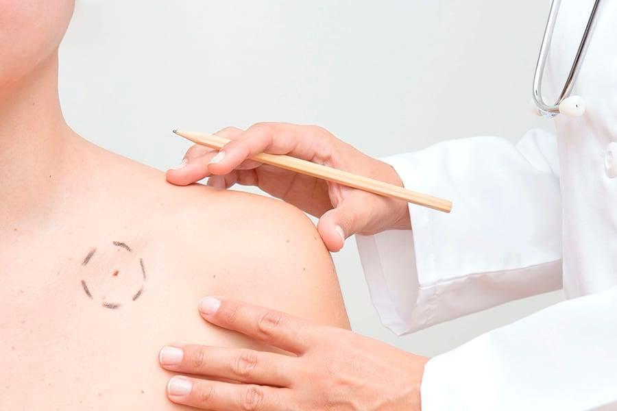 Лазерная терапия в лечении папиллом — разбираем достоинства и недостатки