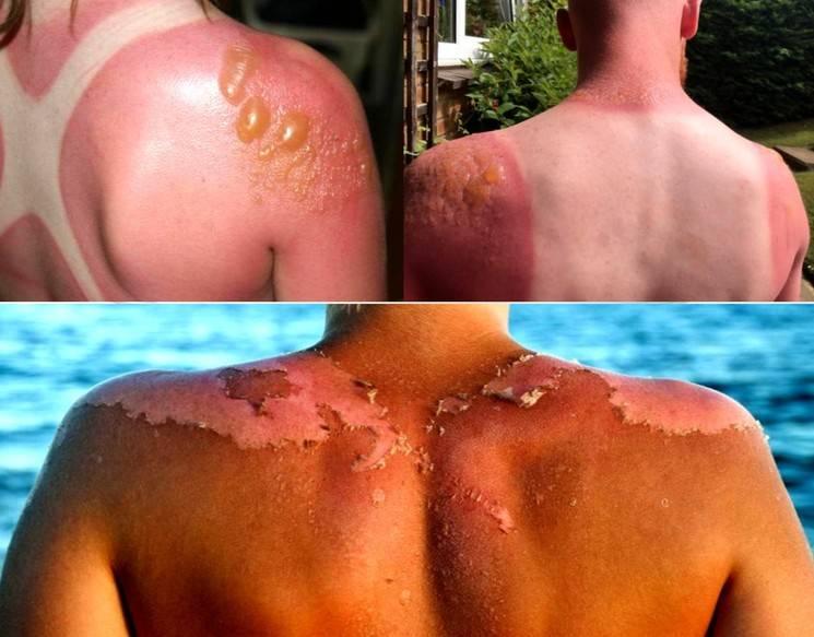 Чем опасен солнечный ожог кожи, симптомы, степени тяжести, лечение, профилактика