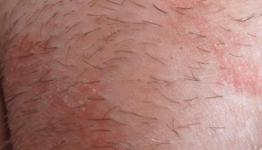 Сыпь на лобке у женщин и мужчин: диагностика и лечение