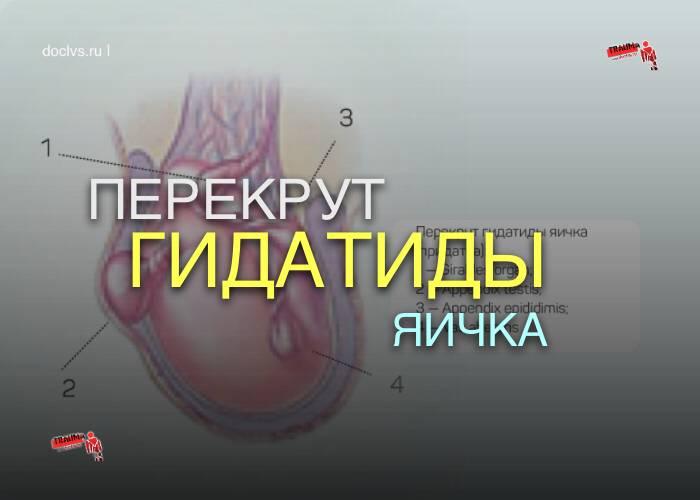 Перекрут гидатиды яичка: диагностика и лечение