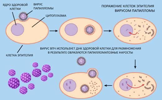 Вирус папилломы человека у мужчин: симптомы, лечение, удаление