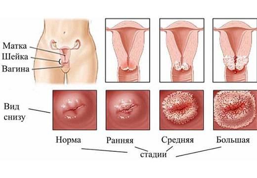 Впч у женщин: чем лечить заболевание самостоятельно?