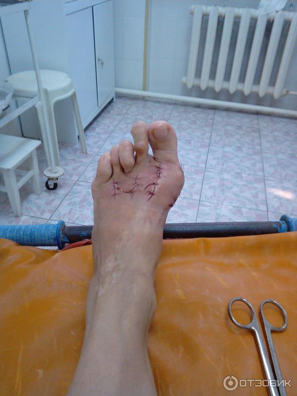 Способы лечения мозоли между пальцами ног