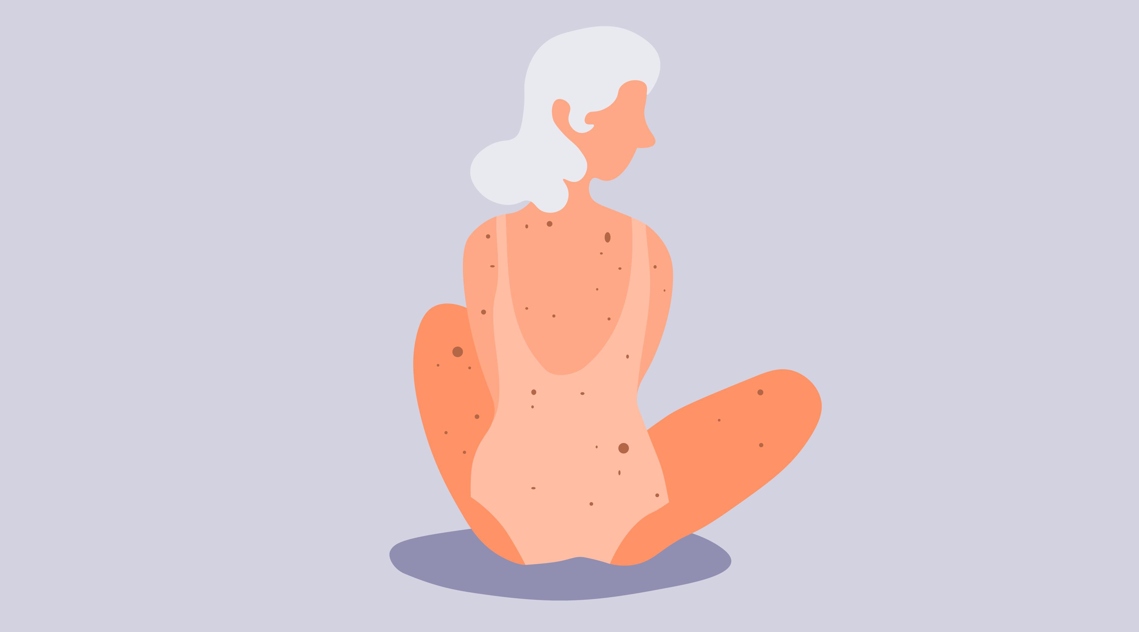 Диета при раке кожи: особенности лечебного рациона