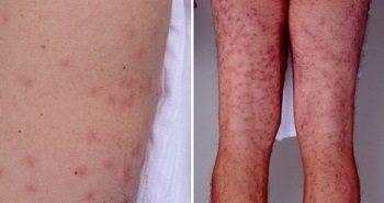 От чего зависит выбор метода избавления от черных точек на коже ног?